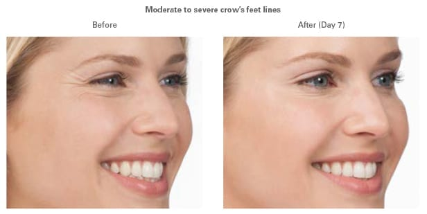 Moderate to severe crow's feet lines. Before And After