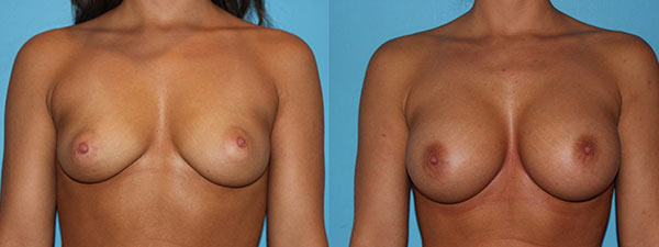 Breast Augmentation before and after front facing view