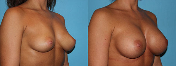 Breast Augmentation before and after side facing view