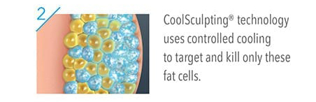 Coolsculpting® technology uses controlled cooling to target and kill only these fat cells.
