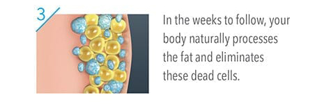 In the Weeks to follow, your body naturally processes the fat and eliminates these dead cells