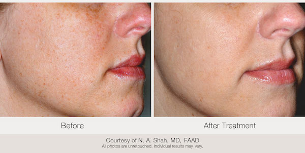 Before and after. Courtesy of N. A. Shah, MD, FAAD