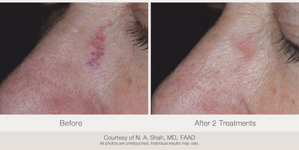 Before and after. Taken after 2 treatments. Courtesy of N. A. Shah, MD, FAAD