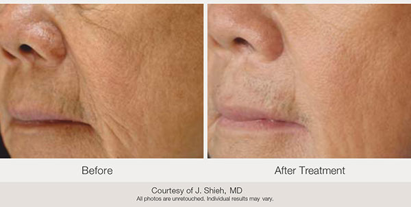 Before and after. Courtesy of J. Shieh, MD
