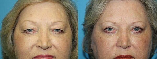Eyelid Before & After - front facing image