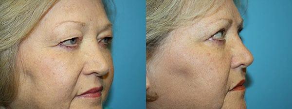 Eyelid Before & After - side facing image