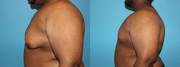 Male Breast Reduction. Before and After. Side View
