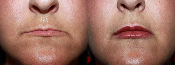 Lip augmentation. Before and after