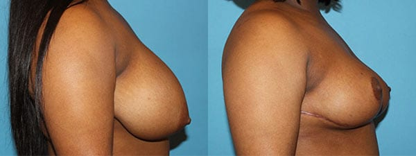 Breast Reduction before and after. Side facing
