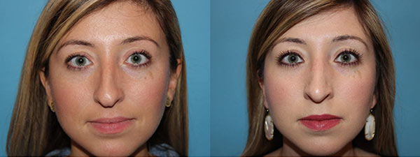 Rhinoplasty. Before and after. Front Facing