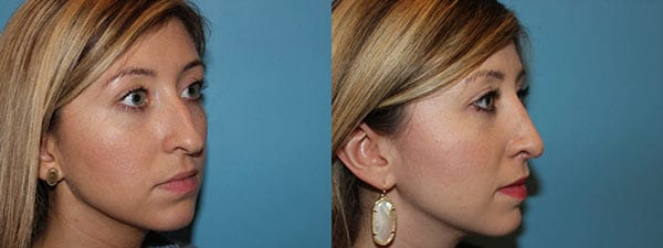 Rhinoplasty. Before and after. Side Facing