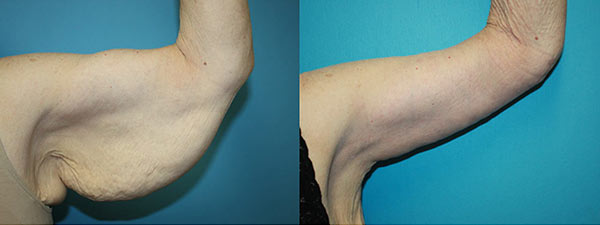 Arm lift before and after. Left arm