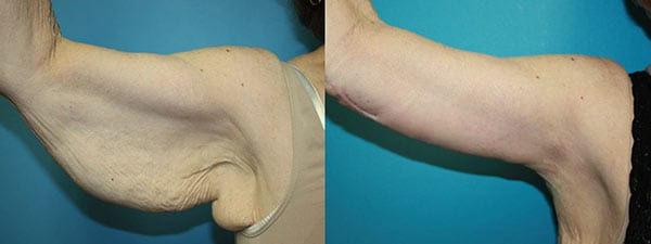 Arm lift before and after. Right arm