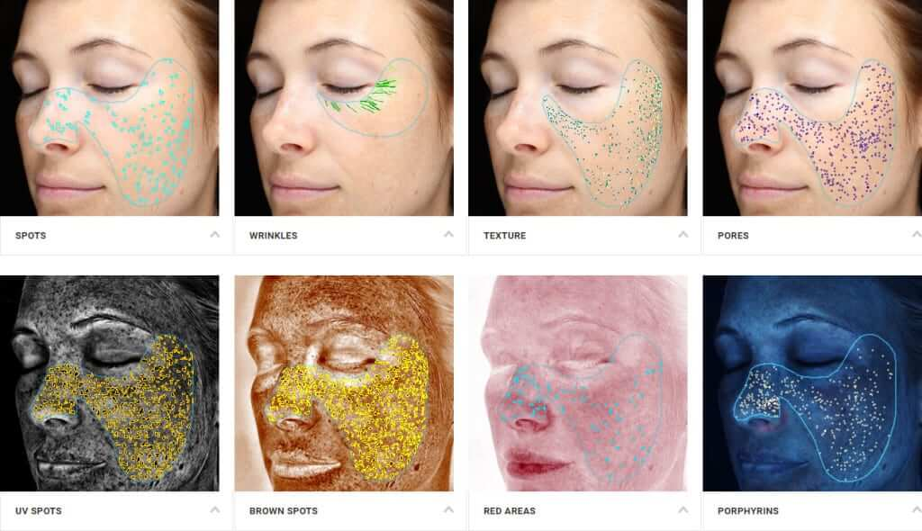 Different skin textures shown due to age, and damage using Visa Complexion Analysis