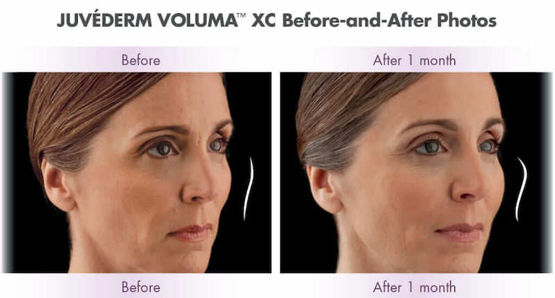 Juvéderm Voluma™ XC Before and After taken one month apart.